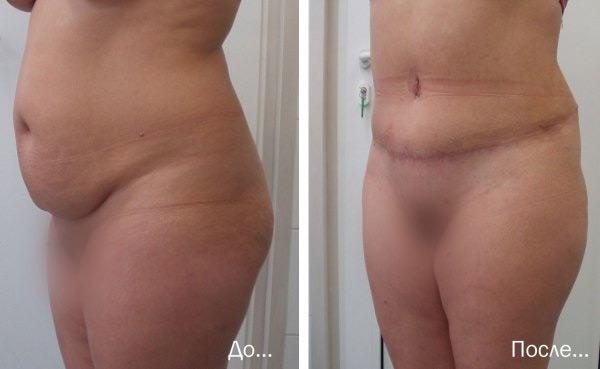 абдоминомопластика: до и после