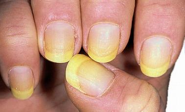 микоз кожи рук и ногтей