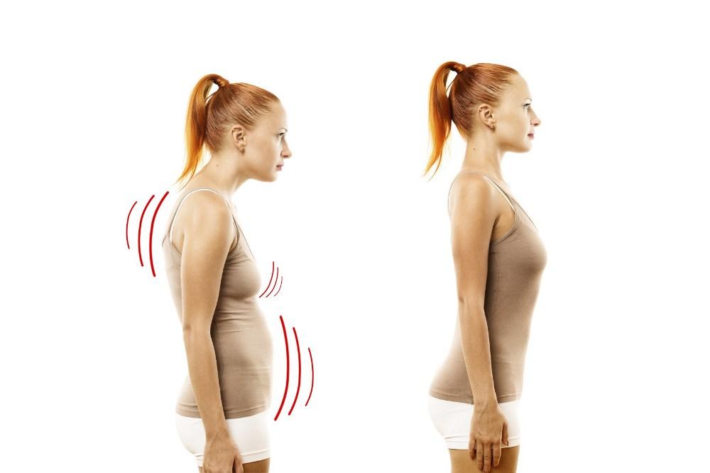 Обвисание груди из-за неправильной осанки